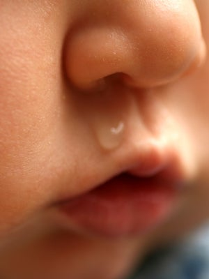 Cmpa Symptom Runny Nose And Sneezing In Babies Nestle Health Science